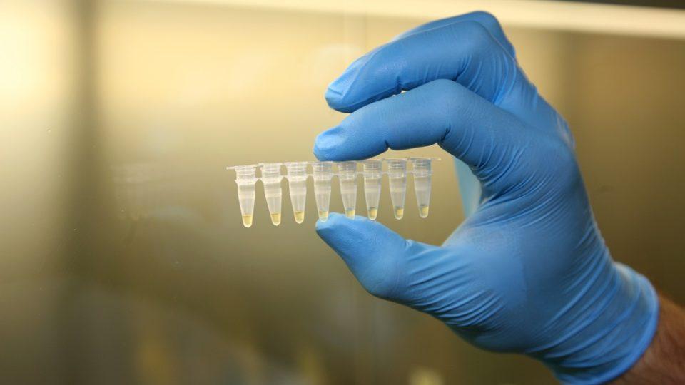 Vzorky DNA připravené k analýze