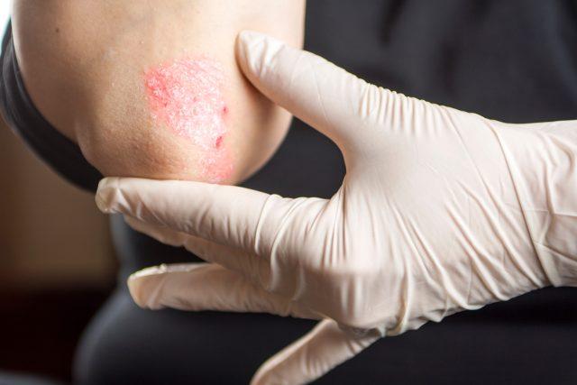 Lupénka, psoriáza, kožní onemocnění, zánět kůže