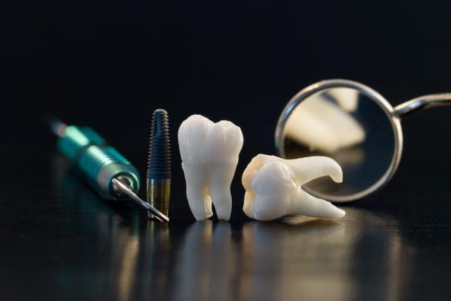Naše vlastní zuby moudrosti se dají použít třeba jako náhrada jiné stoličky, kterou už nelze zachránit