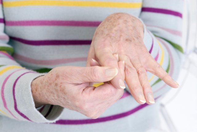 Revma, revmatoidní artritida, zánět, bolest rukou, senior, stáří. Ilustrační foto
